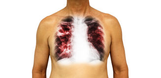 Pulmonary tuberculosis . Human chest with x-ray show cavity at right upper lung and interstitial infiltrate both lung due to infec. Tion . Isolated background Stock Image