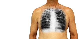 Pulmonary tuberculosis . Human chest with x-ray show interstitial infiltrate both lung due to infection . Isolated background . Bl Royalty Free Stock Photo