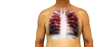 Pulmonary tuberculosis . Human chest with x-ray show interstitial infiltrate both lung due to infection . Isolated background . Bl Royalty Free Stock Image