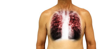 Pulmonary tuberculosis . Human chest with x-ray show interstitial infiltrate both lung due to infection . Isolated background . Bl Royalty Free Stock Images