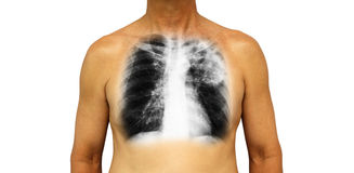 Pulmonary tuberculosis . Human chest with x-ray show patchy infiltrate left upper lung due to infection . Isolated background Stock Images