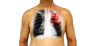 Pulmonary tuberculosis . Human chest with x-ray show patchy infiltrate left upper lung due to infection . Isolated background Royalty Free Stock Photography