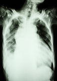 Pulmonary tuberculosis and right lung effusion Stock Photos