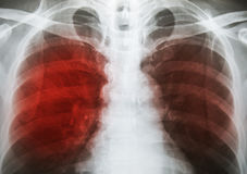 Pulmonary Tuberculosis  TB  : Chest x-ray show alveolar infilt. Ration at both lung due to mycobacterium tuberculosis infection Royalty Free Stock Photos