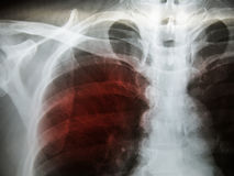 Pulmonary Tuberculosis TB : Chest x-ray show alveolar infilt. Ration at both lung due to mycobacterium tuberculosis infection royalty free stock image