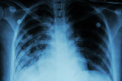 Pulmonary Tuberculosis ( TB )  :  Chest x-ray show alveolar infiltration at both lung due to mycobacterium tuberculosis infection Stock Images