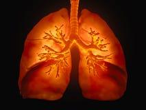 Pulmones con los bronquios visibles Foto de archivo libre de regalías