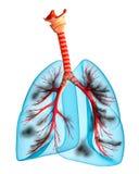Pulmones enfermos Foto de archivo