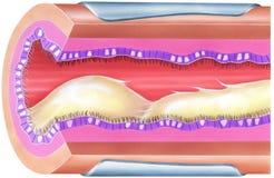 Pulmones - moco bronquial que causa la obstrucción y estrecharse de vía aérea Foto de archivo libre de regalías