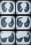 Pulmones y tomografía del corazón Fotografía de archivo