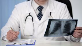 Pulmonologist looking at lung x-ray prescribing treatment to patient, healthcare. Stock photo stock photos