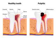 Pulpitis和健康牙 库存图片