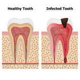 Pulpitis και υγιές δόντι διανυσματική απεικόνιση