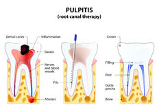 Pulpitis Stock Image