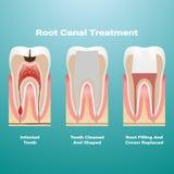 Pulpitis Wurzelkanaltherapie Angesteckte Masse wird vom Zahn entfernt und der Raum, der durch ihn besetzt wird, wird mit einem GU lizenzfreie abbildung