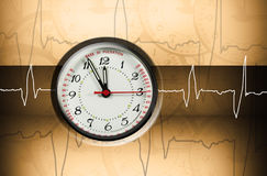 Puls clock Stock Photos