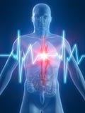 Pulsação do coração/heartattack Fotos de Stock Royalty Free
