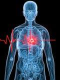 Pulsação do coração/heartattack ilustração royalty free