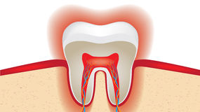 Pulsation of sensitive tooth enamel Royalty Free Stock Images