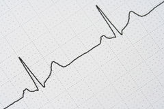 Pulse trace. Close-up of a waveform from an EKG test Stock Image