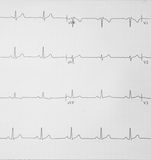 Pulse trace. Close-up of a waveform from an EKG test royalty free stock images