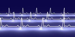 Pulse trace Royalty Free Stock Photo