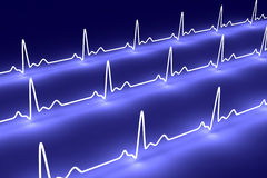 Pulse trace Royalty Free Stock Images