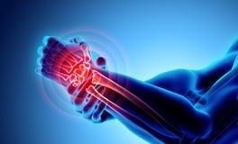 Pulso doloroso - raio X de esqueleto ilustração do vetor