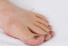 Punta de la acupuntura del hígado 3 imagen de archivo libre de regalías