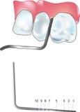 Punta de prueba periodontal Fotos de archivo