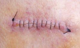 Puntadas después del retiro del cáncer de piel Fotografía de archivo libre de regalías