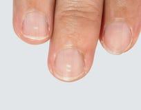 Punti bianchi sulle unghie Immagini Stock Libere da Diritti