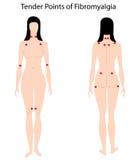 Punti teneri di Fibromyalgia Fotografia Stock