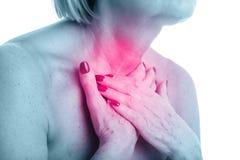 Punto di vista del primo piano della donna adulta con la ghiandola tiroide isolata su fondo bianco immagine stock