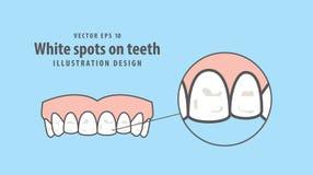 Puntos blancos en vector del ejemplo de los dientes en fondo azul guarida stock de ilustración