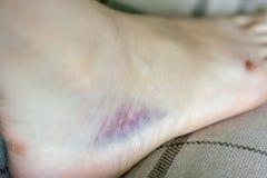 Bruise from sprain on leg. Purple bruise from sprain on leg Stock Image