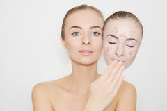 Put away bad sking with pimples,acne Stock Photography