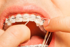 Putting rubber string on braces hooks teeth Stock Photo