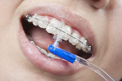 Putzen Ihrer Zähne mit Klammern Lizenzfreie Stockbilder