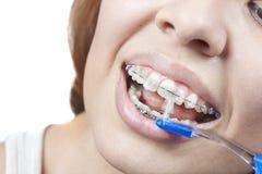Putzen Ihrer Zähne mit Klammern Stockfoto