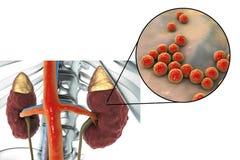 Pyelonephritis που προκαλείται από τον εντερόκοκκο βακτηριδίων Στοκ Φωτογραφίες