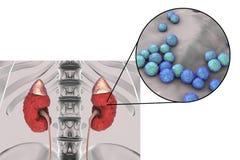 Pyelonephritis που προκαλείται από τον εντερόκοκκο βακτηριδίων Στοκ Εικόνες