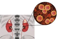 Pyelonephritis που προκαλείται από τον εντερόκοκκο βακτηριδίων Στοκ Φωτογραφία