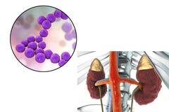 Pyelonephritis που προκαλείται από τον εντερόκοκκο βακτηριδίων Στοκ φωτογραφία με δικαίωμα ελεύθερης χρήσης