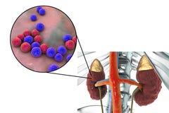 Pyelonephritis που προκαλείται από τον εντερόκοκκο βακτηριδίων Στοκ Εικόνα