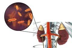 Pyelonephritis, την άποψη κινηματογραφήσεων σε πρώτο πλάνο των βακτηριδίων προκαλούμενη την ανάφλεξη νεφρών Στοκ φωτογραφία με δικαίωμα ελεύθερης χρήσης