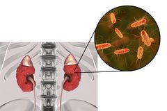 Pyelonephritis, την άποψη κινηματογραφήσεων σε πρώτο πλάνο των βακτηριδίων προκαλούμενη την ανάφλεξη νεφρών Στοκ εικόνες με δικαίωμα ελεύθερης χρήσης