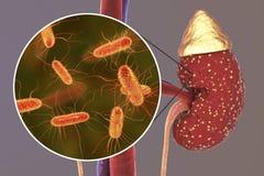 Pyelonephritis, medisch concept, en close-upmening van bacteriën Royalty-vrije Stock Foto's