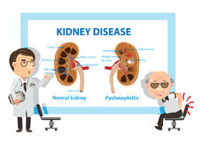 Pyelonephritis. Patients and doctors Viewing diagrams Pyelonephritis. Vector illustration Royalty Free Stock Photo