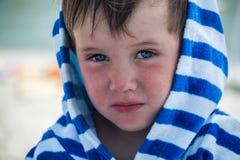 Pys med atopic dermatit i en randig badrock på strandbadrocken, arkivbild